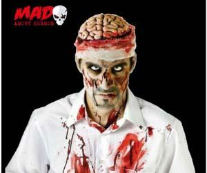 Cerebro Sangrante