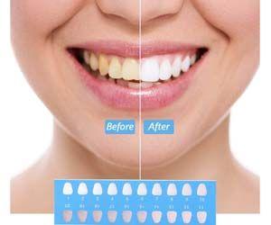 Blanqueador_dental_luz_LED